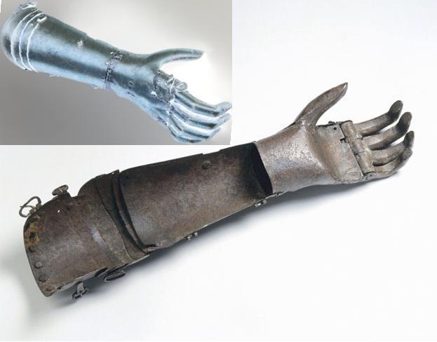 2012_09_26_protez